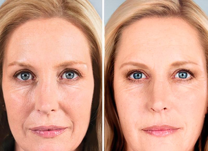 Гиалуроновая косметика До и После